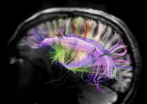 cerebro-cableado
