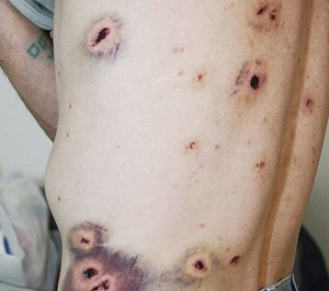 heridas-balas-de-goma